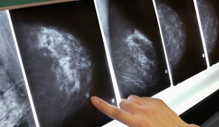 ВЧелябинске появился неповторимый маммограф, различающий 2500 оттенков серого